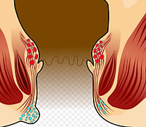 痔瘡與大腸癌