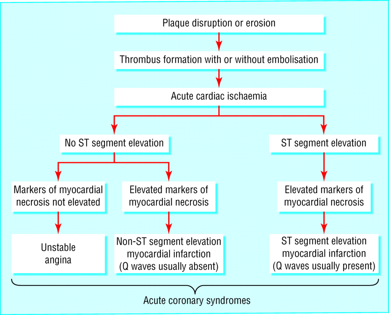 cardiac arteries diagram venn problems and solutions acute coronary syndrome: unstable angina non-st segment elevation myocardial infarction ...