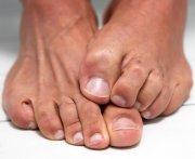 drug treatments toenail