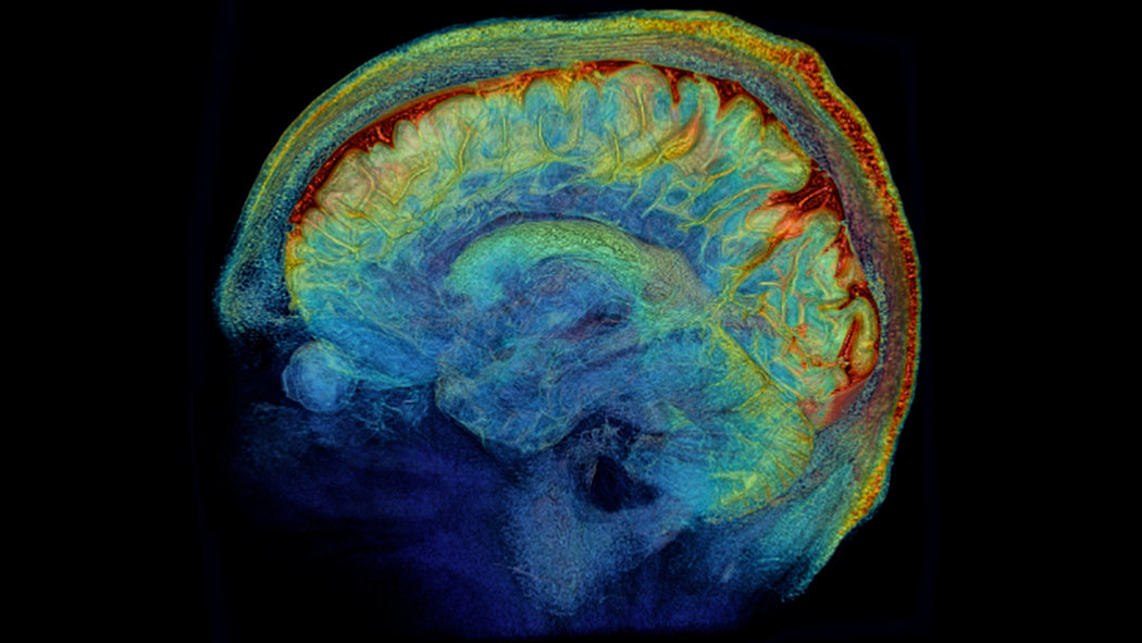 brain wiring diagram all cat muscles the brain, in exquisite detail - new york times