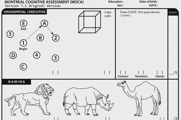 Sample questions from the Montreal Cognitive Assessment, a 10-minute exam meant to highlight possible problems with thinking and memory.