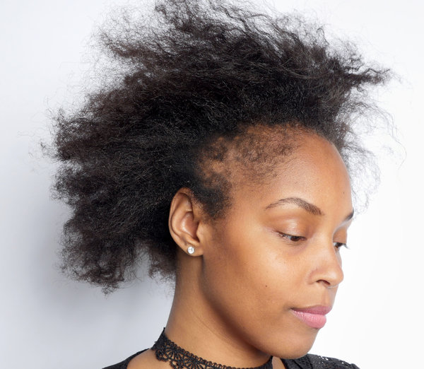 What Black Women Need To Know About Hair Loss The New