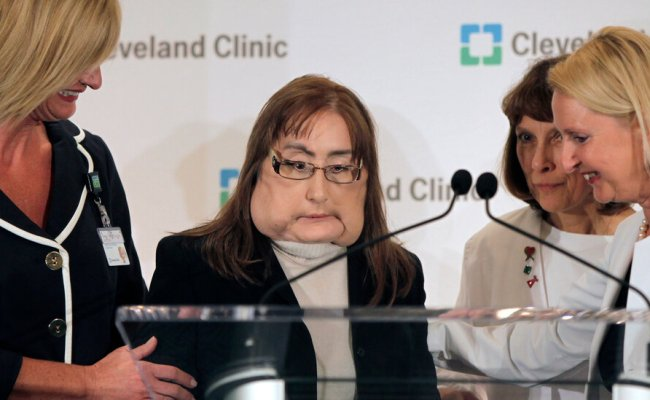 Connie Culp First Face Transplant Recipient In U S Dies
