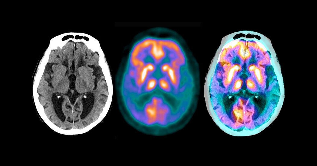 Eli Lilly's Alzheimer's Drug Shows Promise in Small Trial