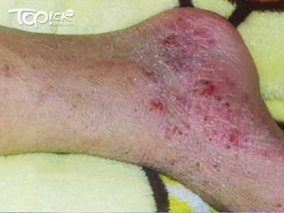 腳步皮膚潰爛出血。(相片由受訪者提供)
