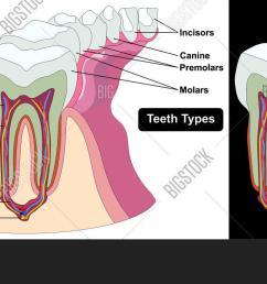 human tooth cross section anatomy enamel dentine pulp cavity gum tissue bone nerve blood vessels cement [ 1500 x 762 Pixel ]