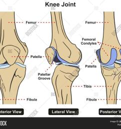 knee joint of human body anatomy infographic diagram including anterior lateral and posterior view with all [ 1500 x 1317 Pixel ]