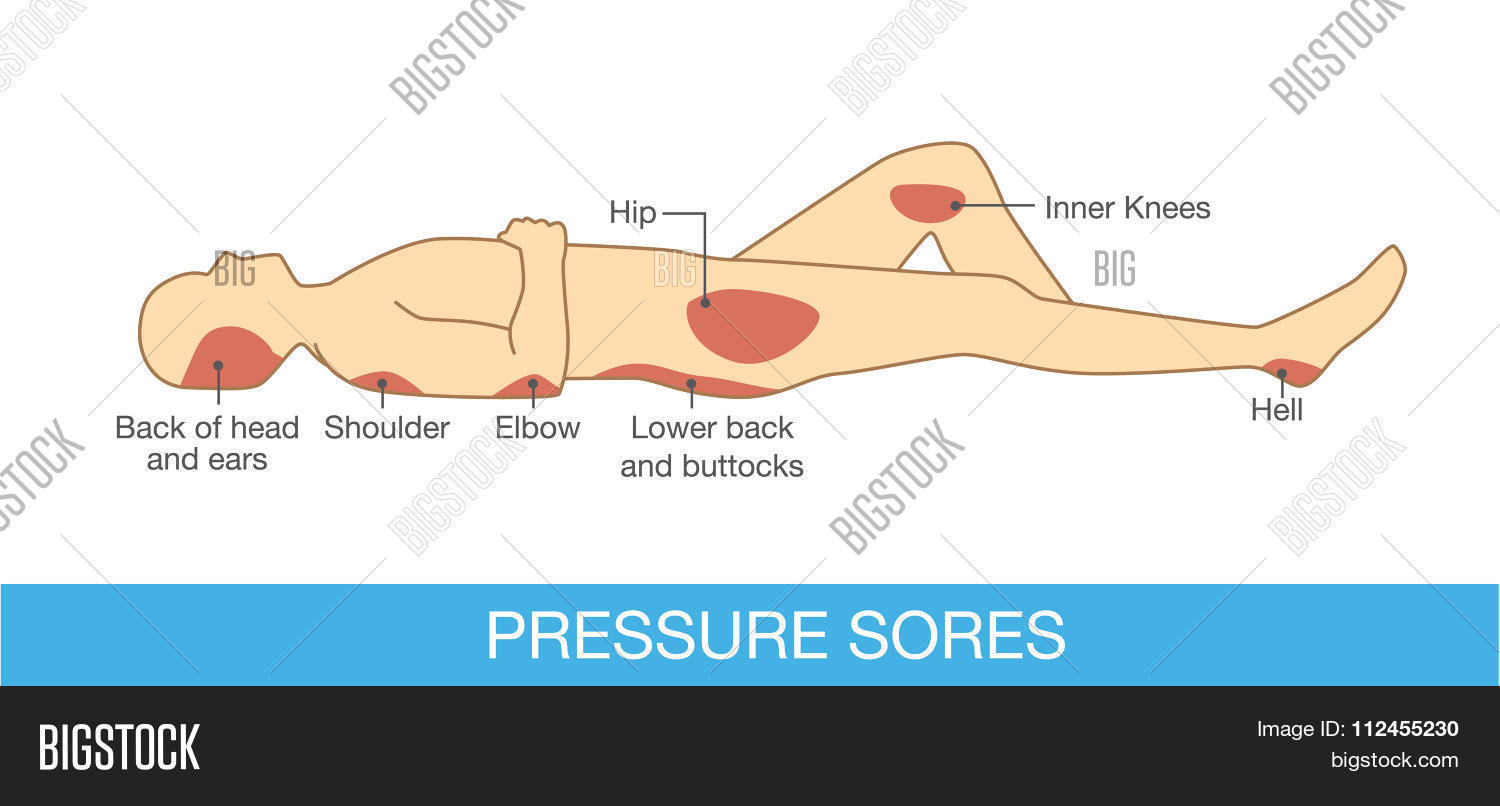 hight resolution of pressure sores area