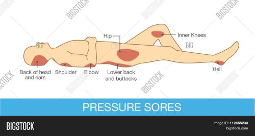 small resolution of pressure sores area