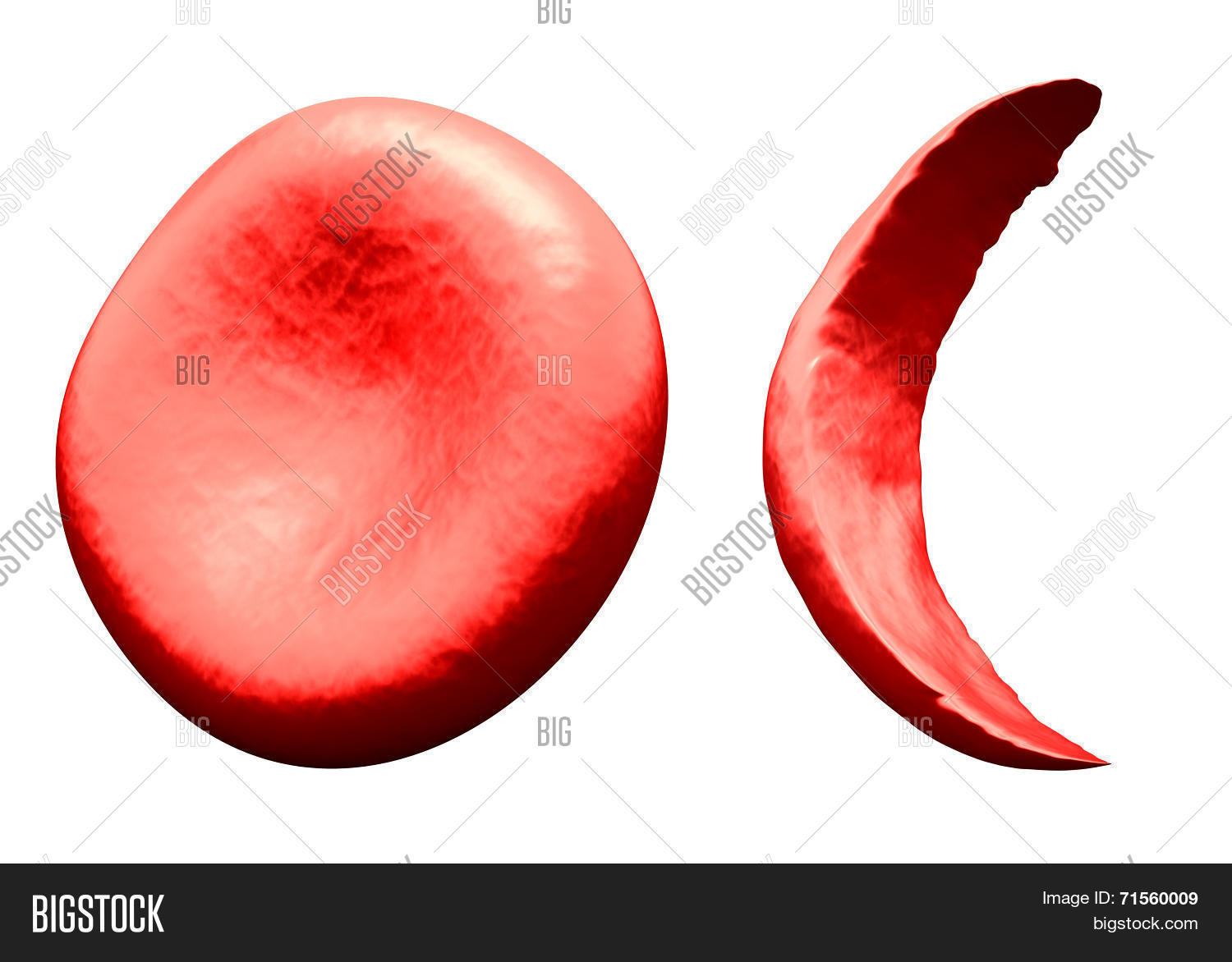 hight resolution of normal vs sickle red blood cell