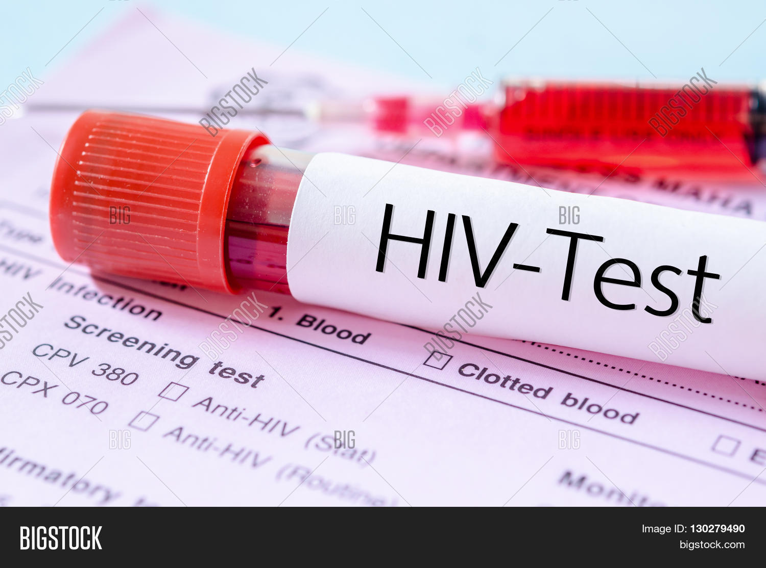 Sample Blood Collection Tube Hiv Image Amp Photo