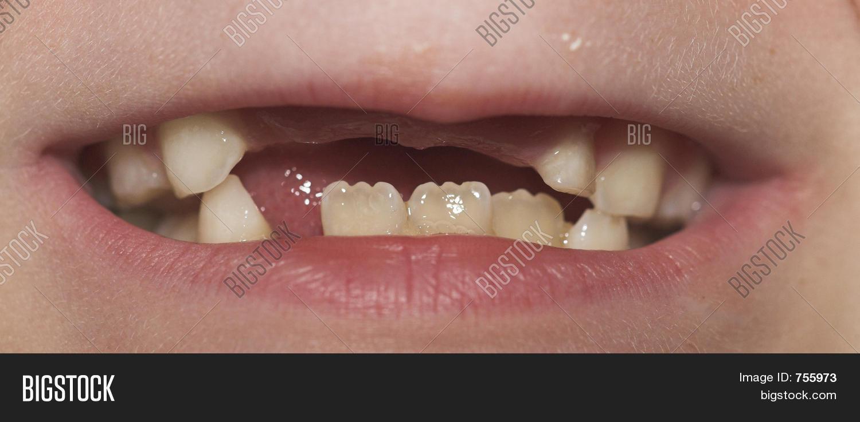 Kids Mouth Missing Teeth Image & Photo   Bigstock