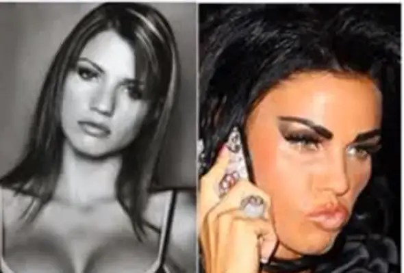 34-year-old British glamour model Katie Price has gone through extensive surgery, including a nose job and lip injections.