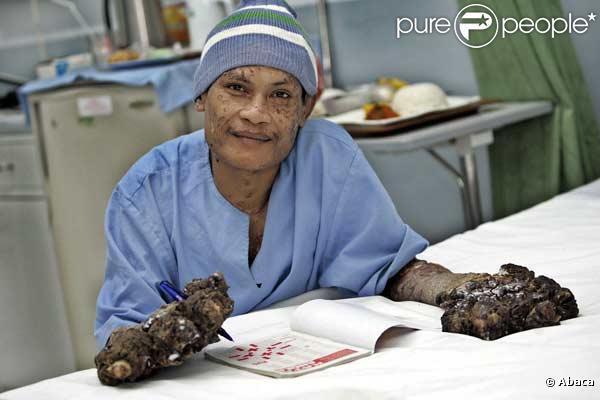 Dede Koswara, l'homme arbre... A l'hôpital, après son opération.