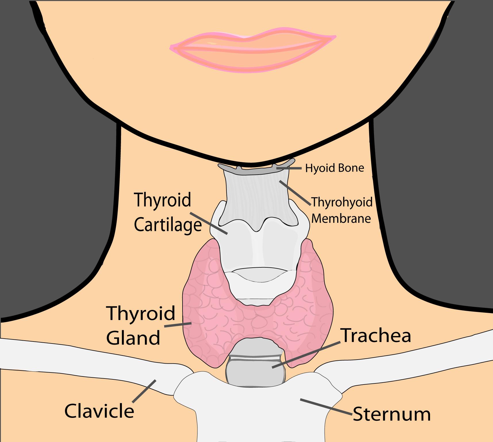 thyroid diagram fixed color jpg [ 1000 x 897 Pixel ]