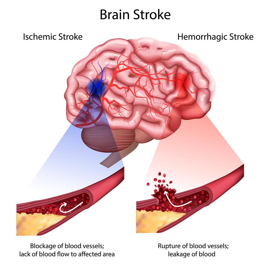 increasing stroke awareness risk factors signs symptoms dr mike sevilla family physician [ 900 x 900 Pixel ]