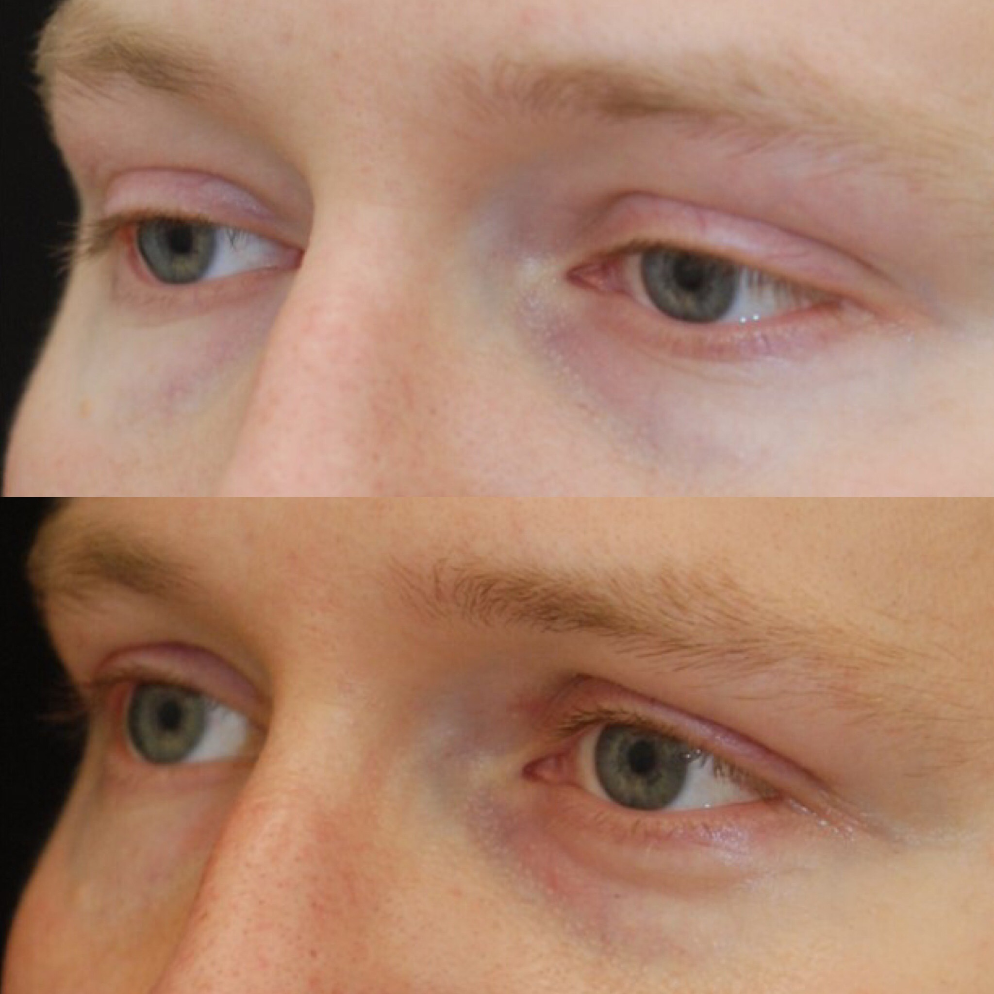 What do scars after eyelift (blepharoplasty) look like ...