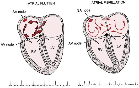 ECG Interpretation for the New Nurse — From New to ICU