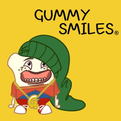Gummy Smile- Global Estetik Dental Care