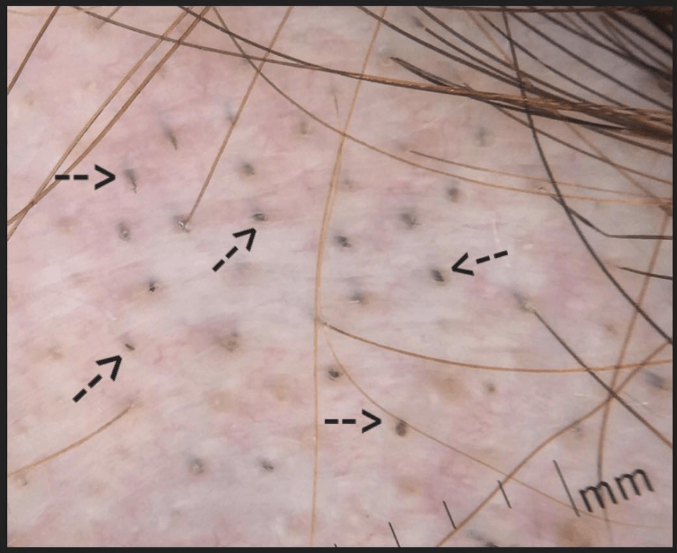 Black Dots In Alopecia Areata Donovan Hair Clinic