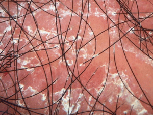 Trichoscopy In Hair Loss Neograft Hair Transplantation 703 844 0184 Alexandria Va 22304