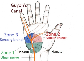 ulnar nerve diagram jd stx38 wiring entrapment neuropathies of upper limb rayner smale guyon s canal courtesy www google com