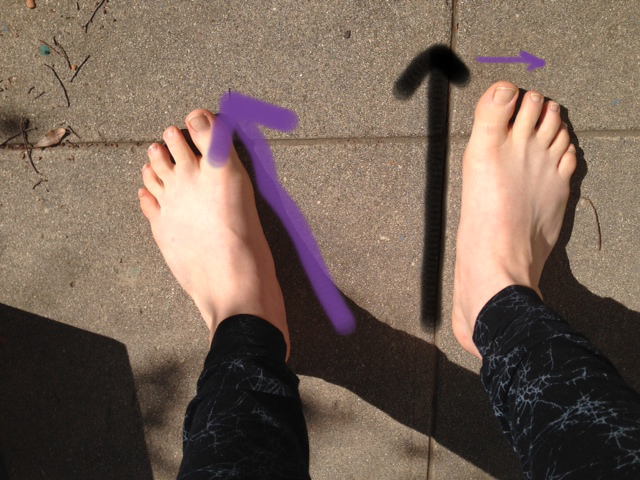 I Turn Out My Feet-So Now What? — Musicians' Health Collective