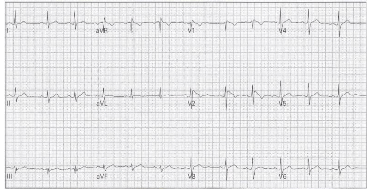 Can't miss ECGs in syncope (quiz) — The Sharp End