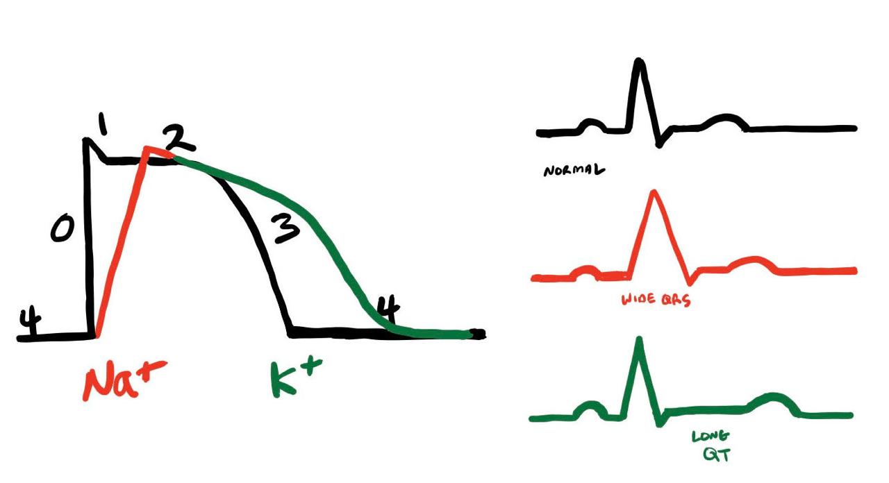 normal ekg diagram [ 1280 x 696 Pixel ]