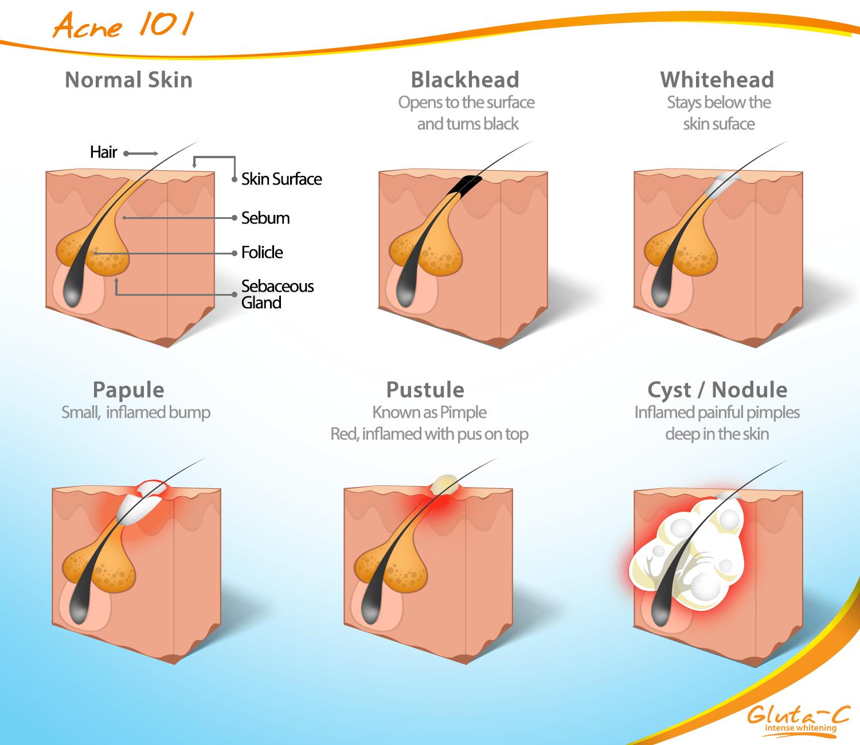 deep pimple diagram [ 1500 x 1300 Pixel ]