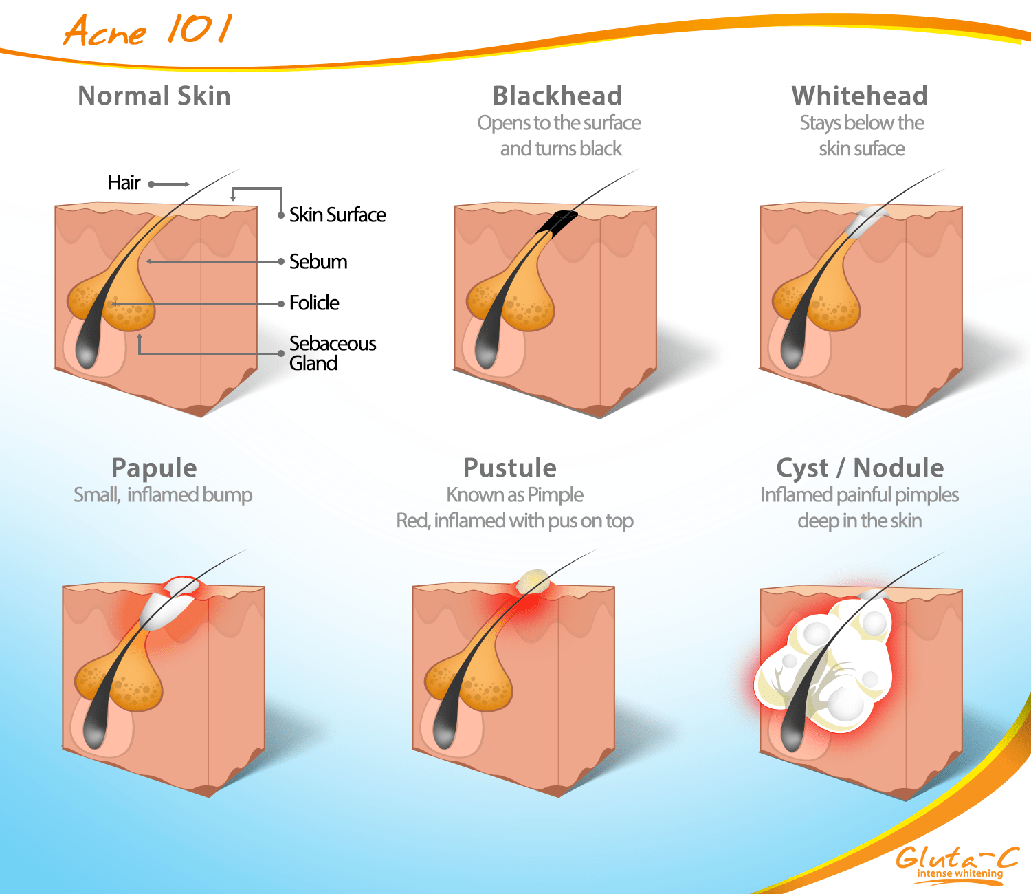 hight resolution of the 101 adult acne