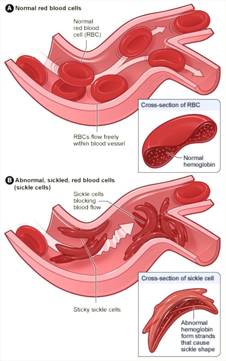 small resolution of figure 1 nbsp diagram of sickle cells causing vaso occlusive crisis
