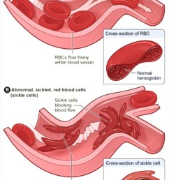 figure 1 nbsp diagram of sickle cells causing vaso occlusive crisis [ 750 x 1200 Pixel ]