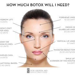 Blank Face Diagram Botox 1955 Chevrolet Wiring | Dysport — Nashville Cosmetic Surgery