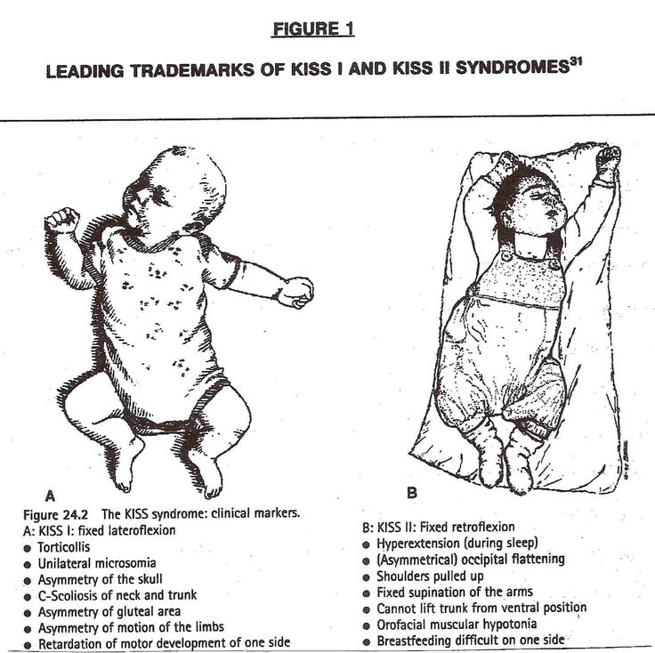 KISS Syndrome In Infants — Transforming Adjustments