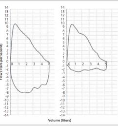 figure 2 flow volume loop left normal expiratory and inspiratory loop [ 1000 x 982 Pixel ]