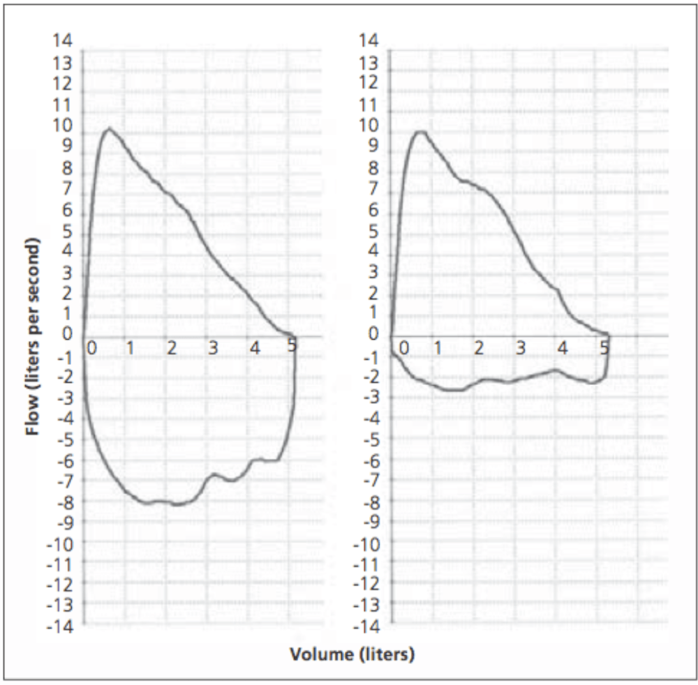 medium resolution of figure 2 flow volume loop left normal expiratory and inspiratory loop