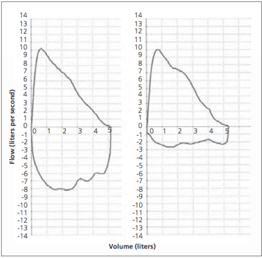 hight resolution of figure 2 flow volume loop left normal expiratory and inspiratory loop
