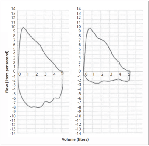 small resolution of figure 2 flow volume loop left normal expiratory and inspiratory loop