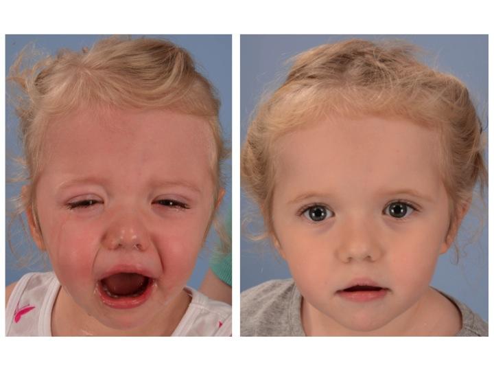 Coronal Synostosis — Dallas Pediatric Plastic Surgeon. Craniofacial Surgeon. Cleft Lip and Palate. Craniosynostosis. Rhinoplasty. Microtia