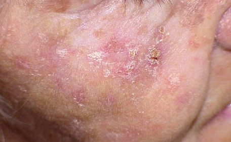 Image result for Actinic keratosis