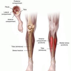Diagram Of Tibia Stress Fracture 1988 Ford Ranger Wiring Radio Shin Splints Info And Prevention Champion Performance Physical