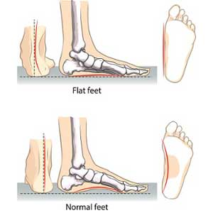 bones in your foot diagram international school bus engine vitality chiropractic and wellnessfeet foundation you see it s all connected when one portion fails the others must compensate this can lead to joint irritation areas far from feet