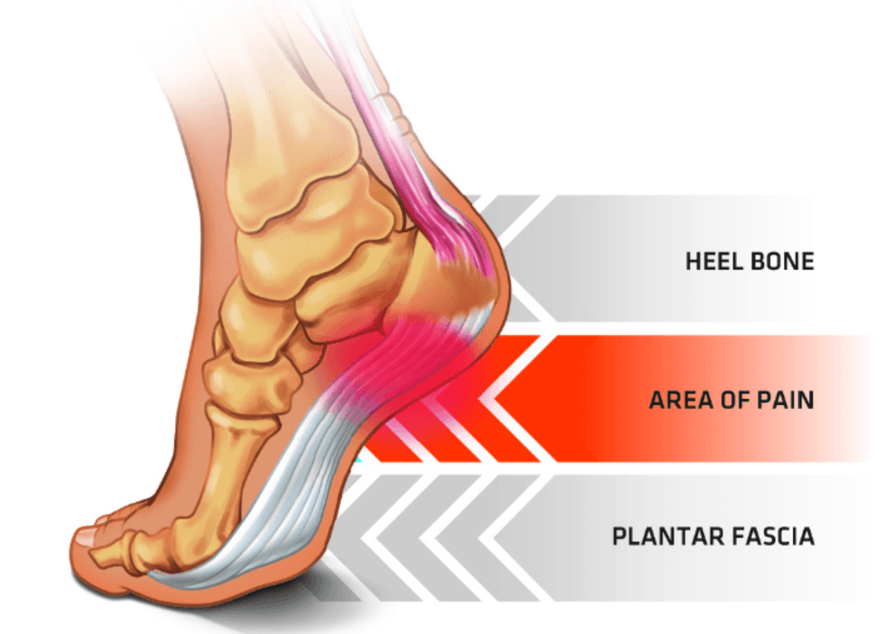 hight resolution of pain in the foot