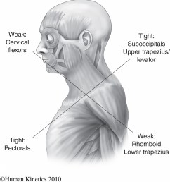 in short it is the chronic over activation of the pec musculature on the anterior front side and the suboccipital trap and levator scapulae musculature  [ 1000 x 1073 Pixel ]
