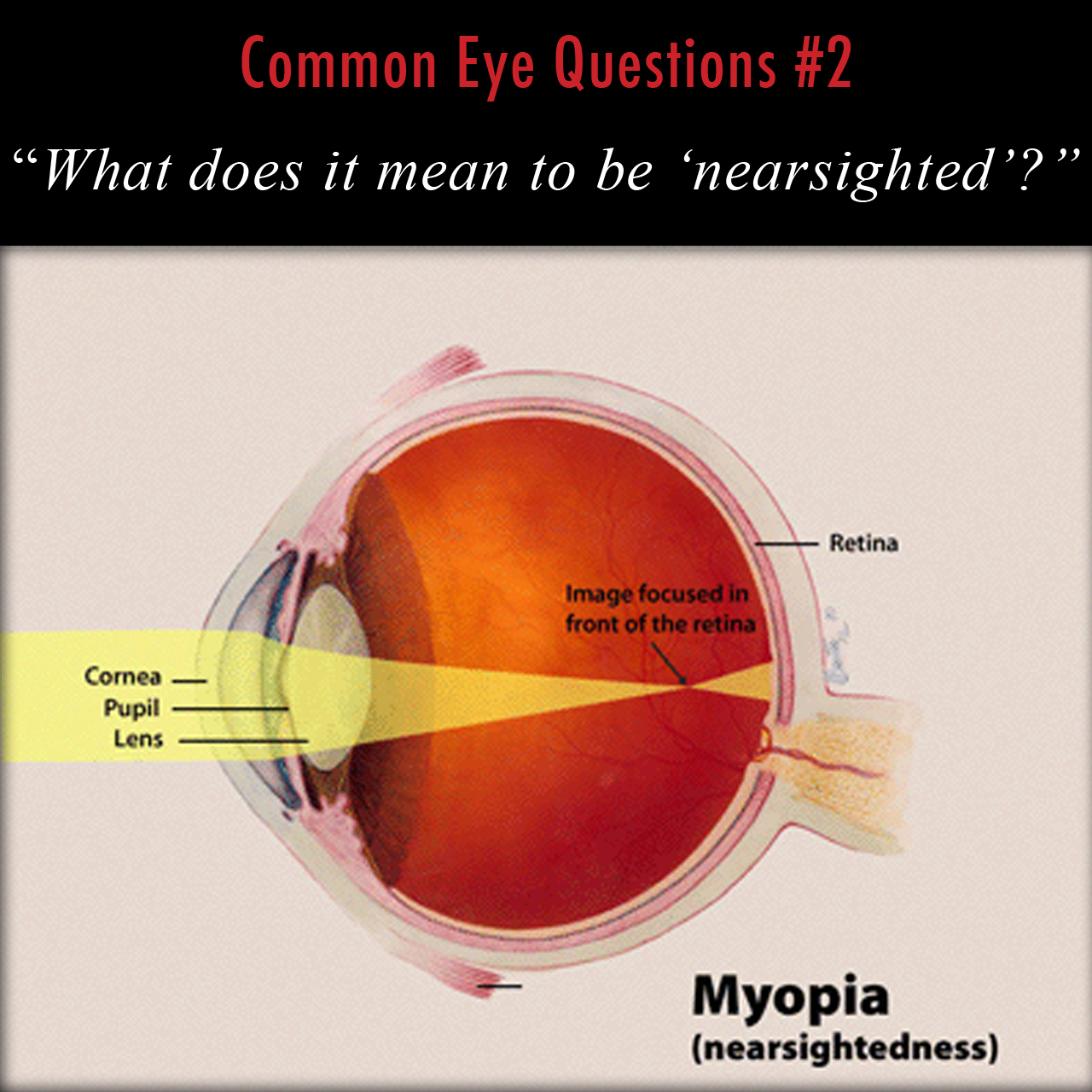 what does it mean to be nearsighted matt weed md spokane pediatric ophthalmologist [ 1280 x 1280 Pixel ]