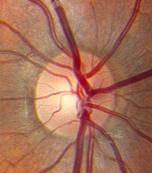 Mystery Diagnosis: Optic Disc Drusen — Matt Weed MD ...