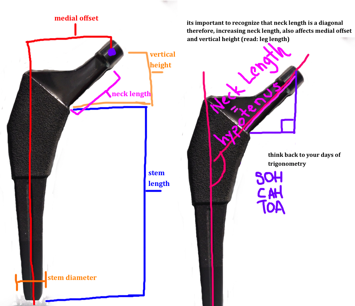 hight resolution of important landmarks of the femoral stem