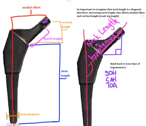 small resolution of important landmarks of the femoral stem