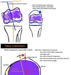 diagram showing internal rotation of the tibial component and internal rotation of the femoral component in [ 791 x 998 Pixel ]
